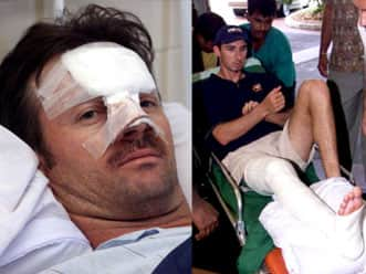 Mark Boucher – the latest in a long list of victims of freak injuries on a cricket field